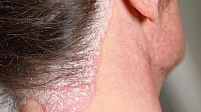 Bagaimana mengatasi gatal eksim kering di leher?