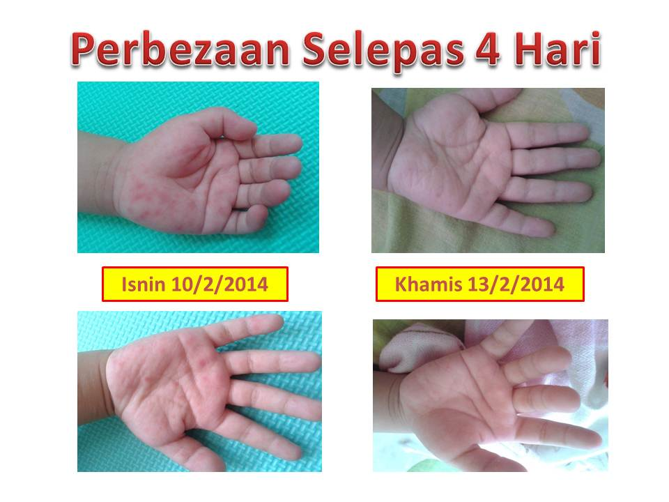 Image result for testimoni HFMD