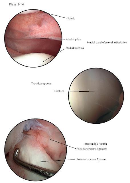 RUPTURE OF CRUCIATE LIGAMENTS: ARTHROSCOPY