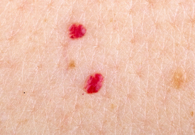 13 Weird Skin Spots You Should Definitely Get Checked Out