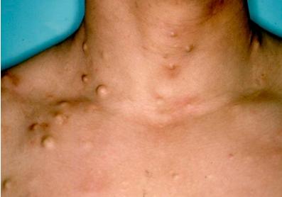 Gardner 综合征,胸部的多发性表皮囊肿
