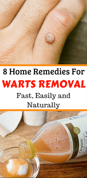 8 Home Remedies For Warts Removal Fast, Easily and Naturally