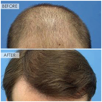 Best Hair Transplant In Boston, Ma  Revive Hair. Compare Brokerage Accounts K9 Web Protection. Anti Obesity Medication Newton Fire And Flood. Sacramento Montessori School. Mba In Entrepreneurship Online. Qa Certification Online Barber Shop San Mateo. Credit Card With Best Cash Back. Bird Rock Animal Clinic Dr Moiin Dermatologist. Google Docs Survey Tool Blue Ridge Cable Email