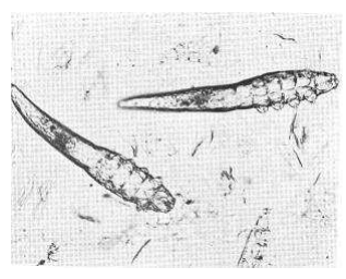 sarna-demodex
