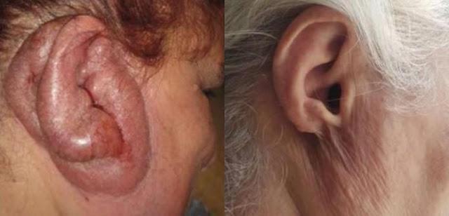 كيف يصاب الإنسان بمرض تشوه الأذن