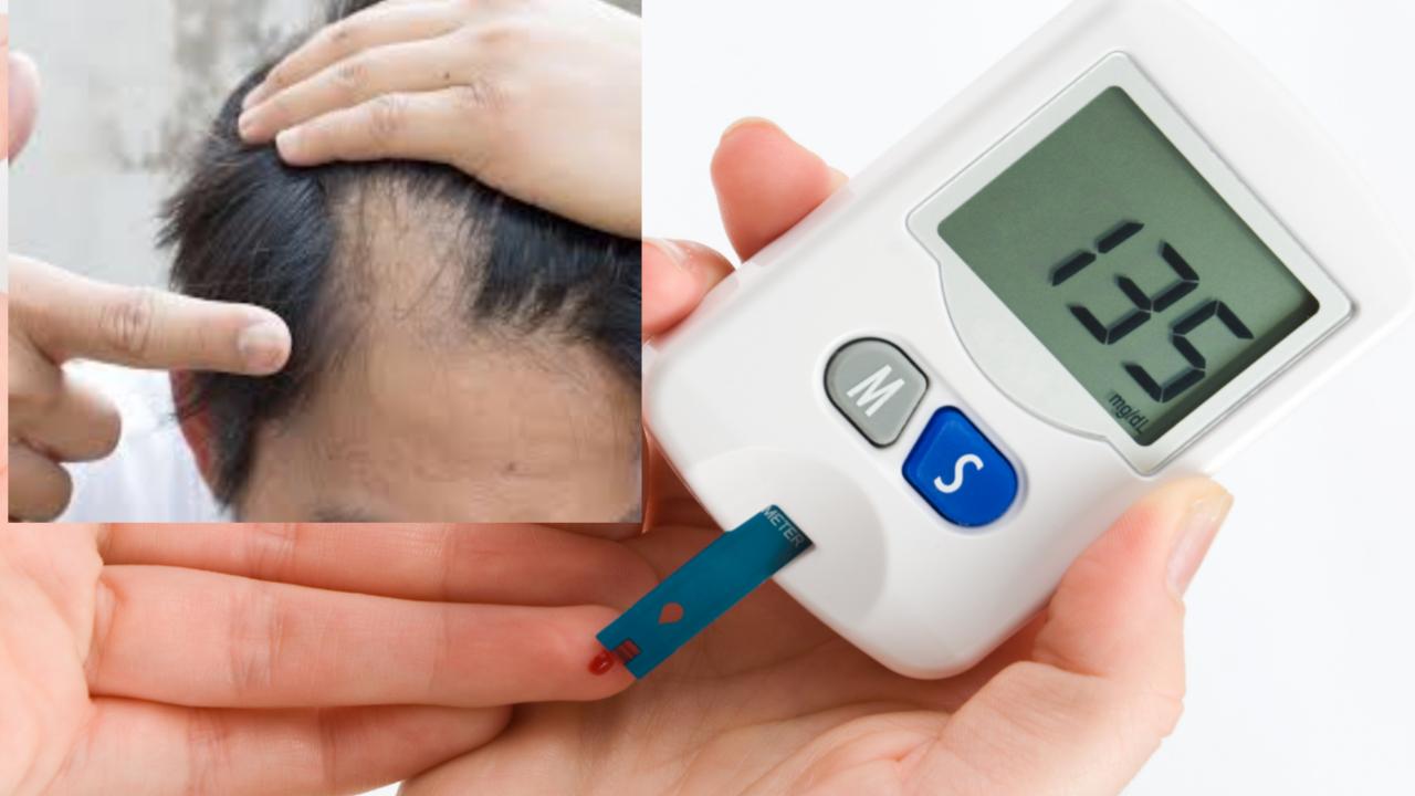Diabetes Symptoms in Nepali