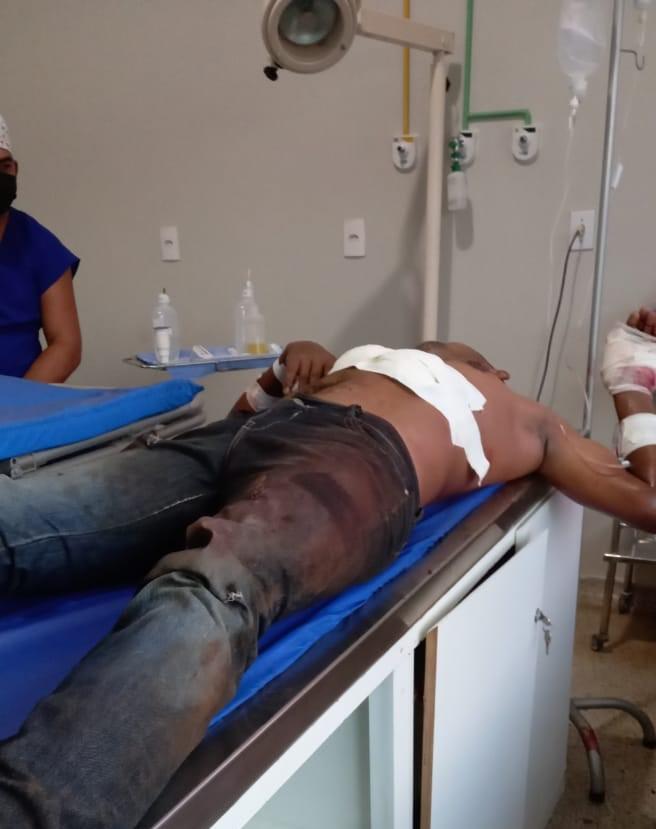 Assaltante é baleado após trocar tiros com a polícia militar em Vargem Grande