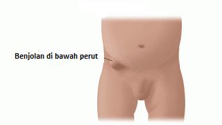 Cara mengobati benjolan di bawah perut