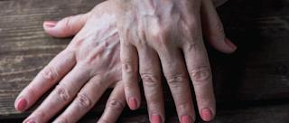 Penyebab dan Gejala Kondisi Kelainan Albinisme