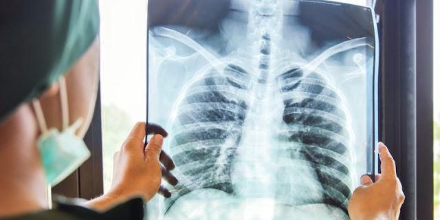 Dokter Yang Terjangkit Corona Ceritakan Kisahnya : Penyakit Ini Nyata, Paru-paru Saya Mengalami Kerusakan yang Lumayan Hebat