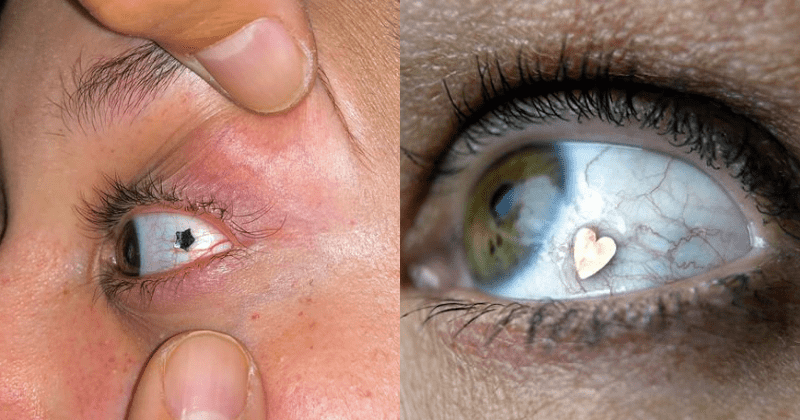 People Are Getting Their Eyeballs Pierced, And It Looks Painful