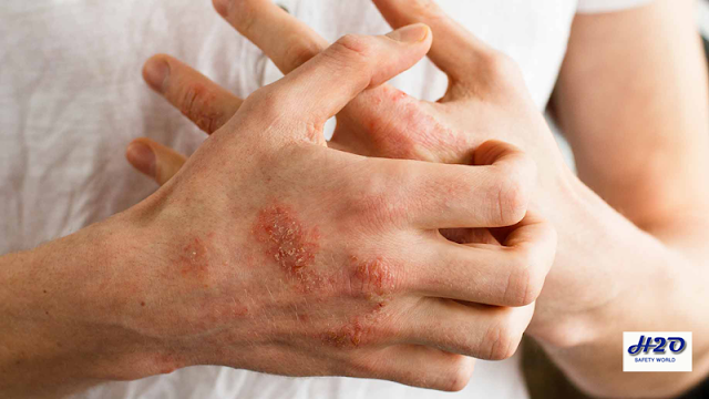 eczema,eczema treatment,how to heal eczema,how to cure eczema,eczema on face,eczema diet,eczema cure,eczema on hands,how to get rid of eczema,eczema rash,face eczema,eczema vine,skin eczema,eczema eggs,atopic dermatitis,wheat eczema,eczmea,ezcema,atopic eczema,what is eczema,eczema on skin,eczema on legs,cure,eczema ki dawa,eczema ka ilaj,eyelid eczema,dr dray eczema,eczema relief,chronic eczema,outgrow eczema