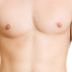50% Rise in The Number of Men Opting for Breast Reduction Surgery
