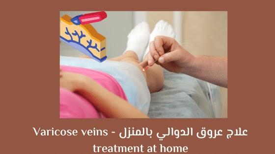 علاج عروق الدوالي بالمنزل - Varicose veins treatment at home