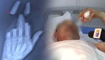 jari tangan putus akibat bermain layang-layang