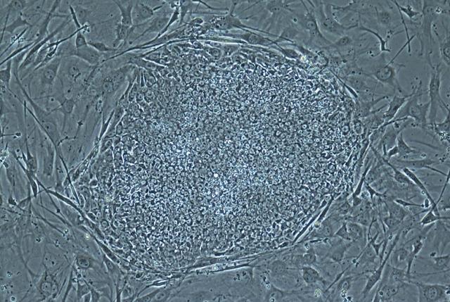 di Indonesia Pengembangan Stem Cell dinilai tak Ketinggalan