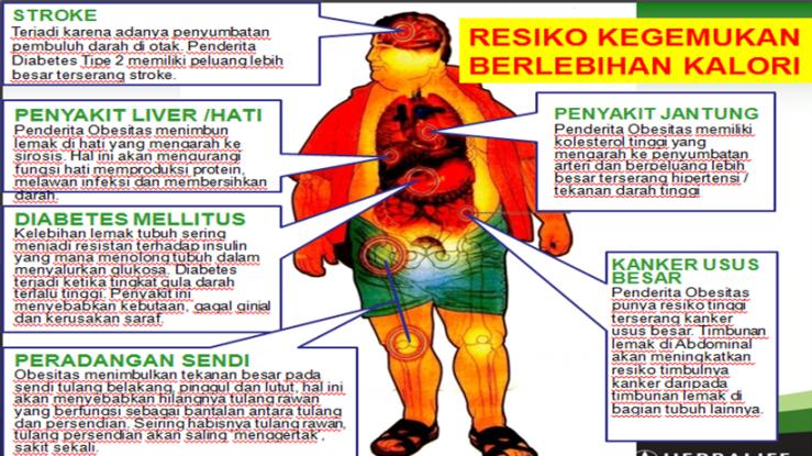 Obesitas atau Kegemukan