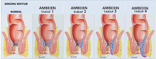 obat herbal ambeien tanpa operasi