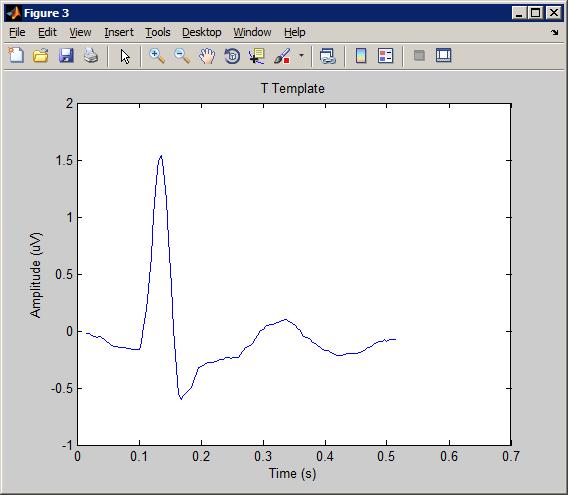 Ecg Signal Segmentation Matlab Code