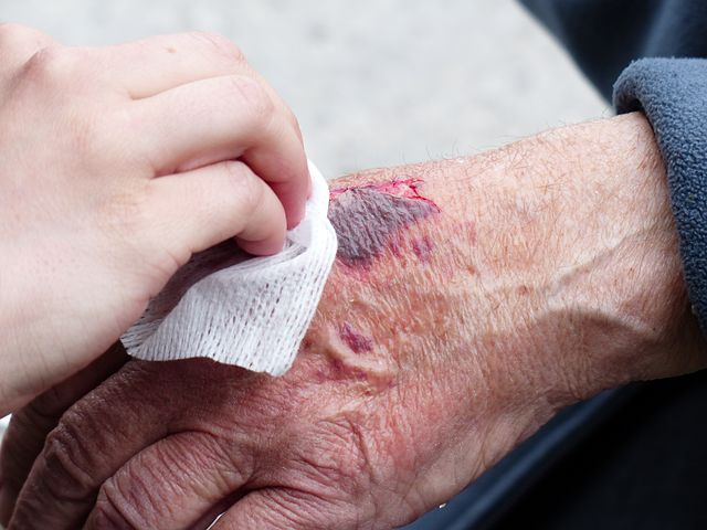 Penyakit kulit salah satu penyebab bau badan