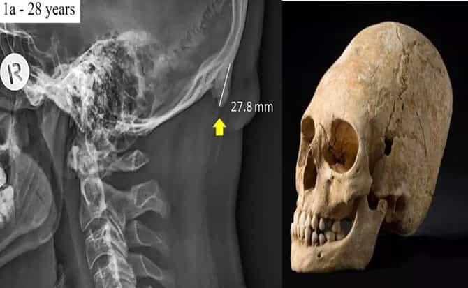 Smartphone, huesos, cabeza