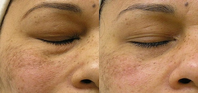 10 Ways to Brighten Dull and Oily Natural Faces in 1 Week