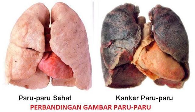 kanker paru paru kanker no satu yang banyak merenggut nyawa di amerika