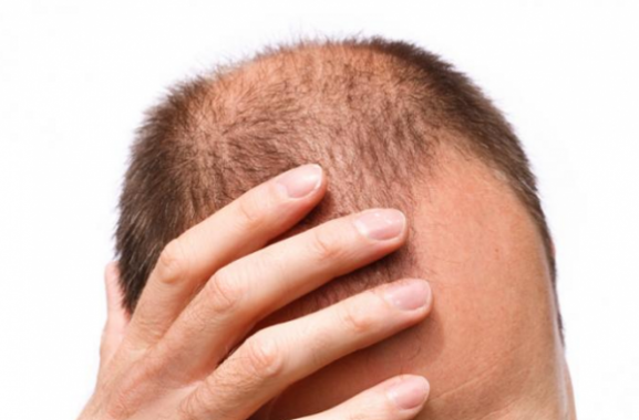 Treatment of hereditary hair loss in men
