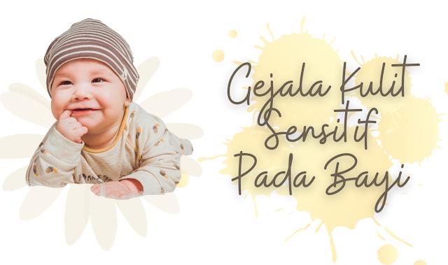 Gejala kulit sensitif bayi