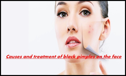 acne treatment,causes of pimples on face,pimple,pimples,how to get rid of acne,forehead acne causes and treatment,dark spots on face removal,causes and treatment of acne,causes and treatment of scalp acne,causes and treatment of cystic acne,causes symptoms and treatment of acne,how to remove pimples,causes of pimples on cheeks,causes of pimples on forehead,causes of pimples and acne