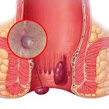 Foto Obat benjolan pada anus anak di apotik