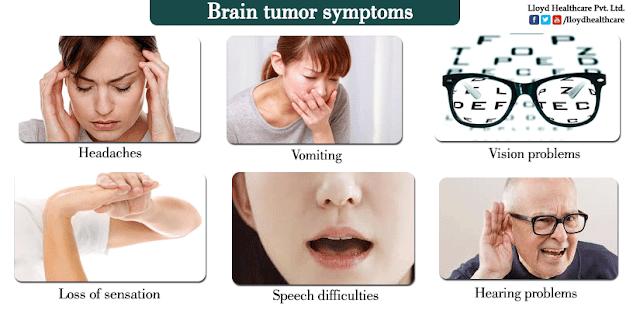 Sakit Kepala Di Awal Pagi Tanda Kanser/Tumor/ Barah Otak ?