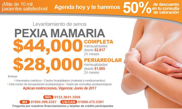 levantamiento de senos pexia mastopexia periareolar paquete costo precio guadalajara
