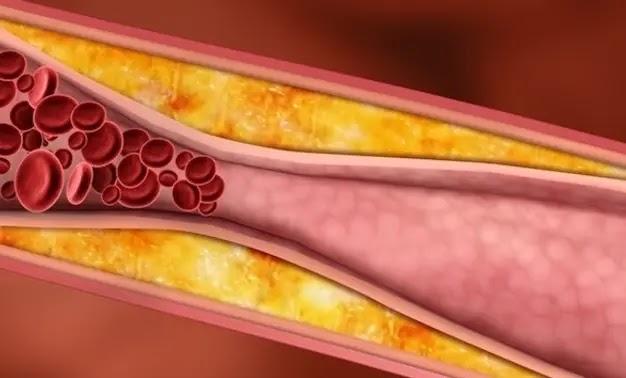 ما هي أنواع الكوليسترول وقيمها الطبيعية