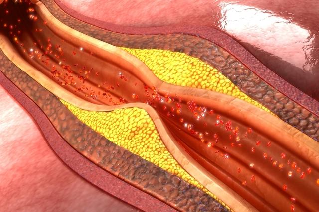 Aterosclerose: o que é, sintomas e tratamento