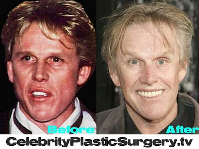 Gary Busey Plastic Surgery Before and After Facelift and ...