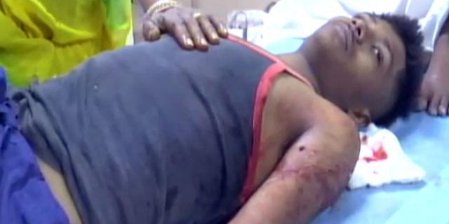 नाबालिग लड़कों पर चाकू से हमला, एक की मौत, एक गंभीर | INDORE NEWS