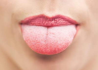 White Tongue? These are the causes and 4 ways to overcome them!