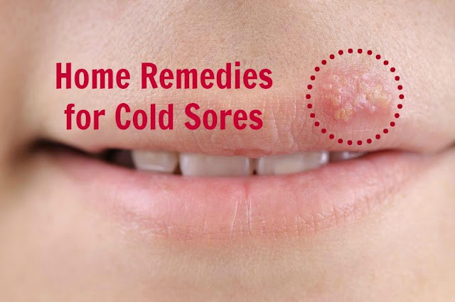 cold sores, treatment of cold sores, prevention of cold sores, home remedies for cold sores, natural remedies for cold sores, facts about cold scores, cold sores treatment, cold sores prevention, cold sores home remedies, cold sores natural remedies, cold sores facts, remedies for cold sores