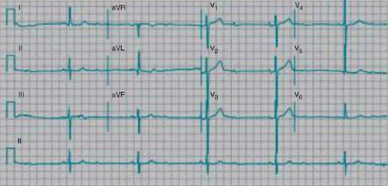 Second-degree heart block