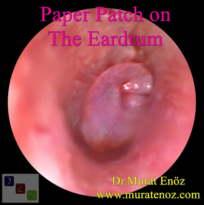 paper patch on the eardrum