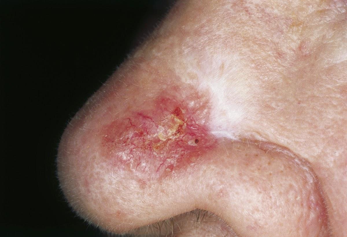 Carcinoma Basocelular Fotos