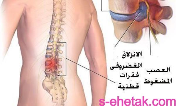 علاج الانزلاق الغضروفي بدون جراحة