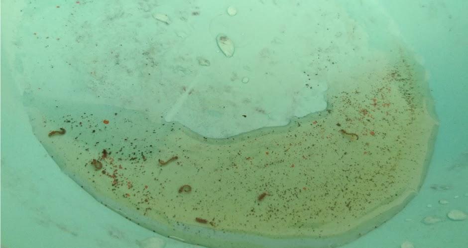 fotos de virus de tumor de próstata