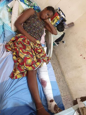PHOTOS: Lady's Leg Amputated After She Was Crushed By Ex-Boyfriend
