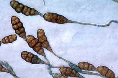 Filum Deuteromycota (Fungi Imperfecti)