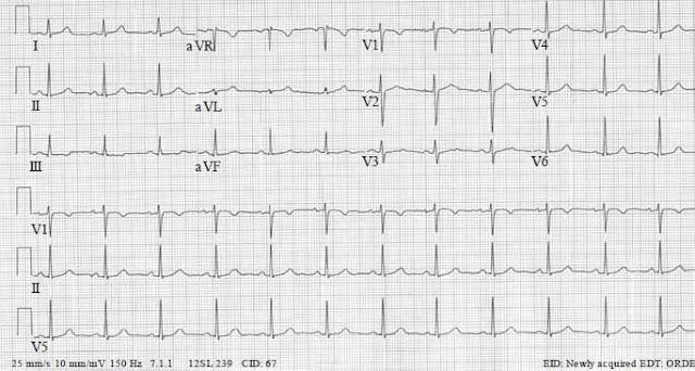 Resting 12- lead ECG