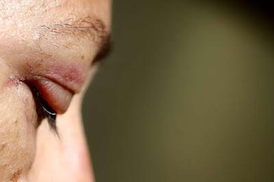 Organizadora de grupo Mulheres Unidas Contra Bolsonaro foi violentamente agredida