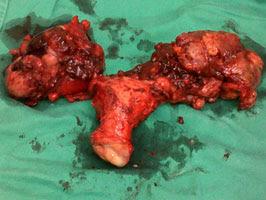 elak-kanser-ovari-dengan-vivix-shaklee