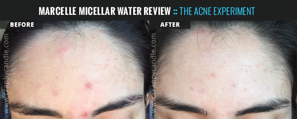 Micellar Water Before & After - The Acne Experiment